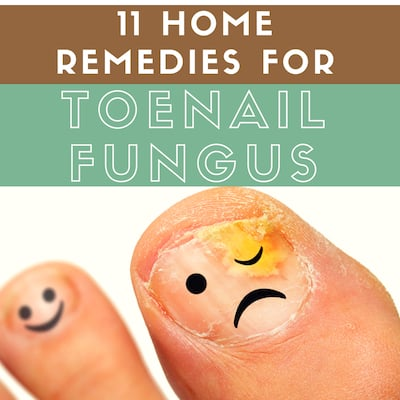 11 Home Remedies For Toenail Fungus That Actually Work | You Should Grow