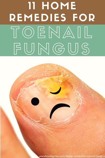 11 home remedies for toenail fungus. Text with image of infected toenail and frowny face